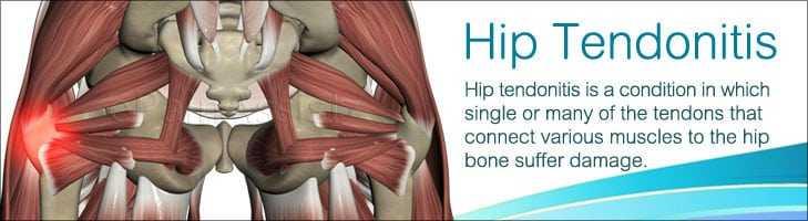 hip Tendonitis