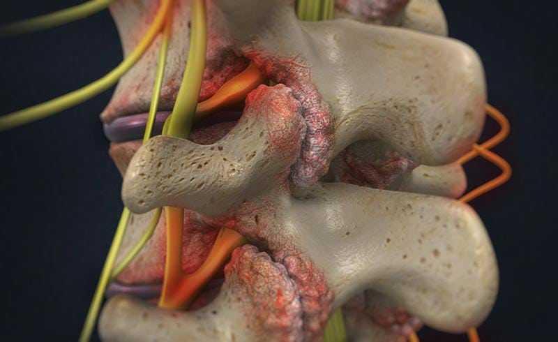 Spinal Stenosis1