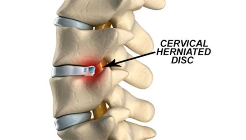 Photo of Herniated Cervical Disc