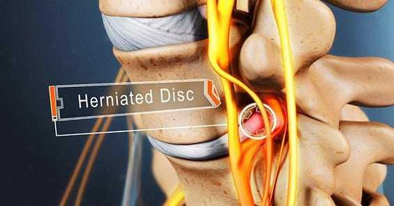 Photo of Treatment For Herniated Disc