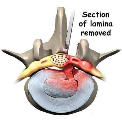 lumbar discectomy surgery