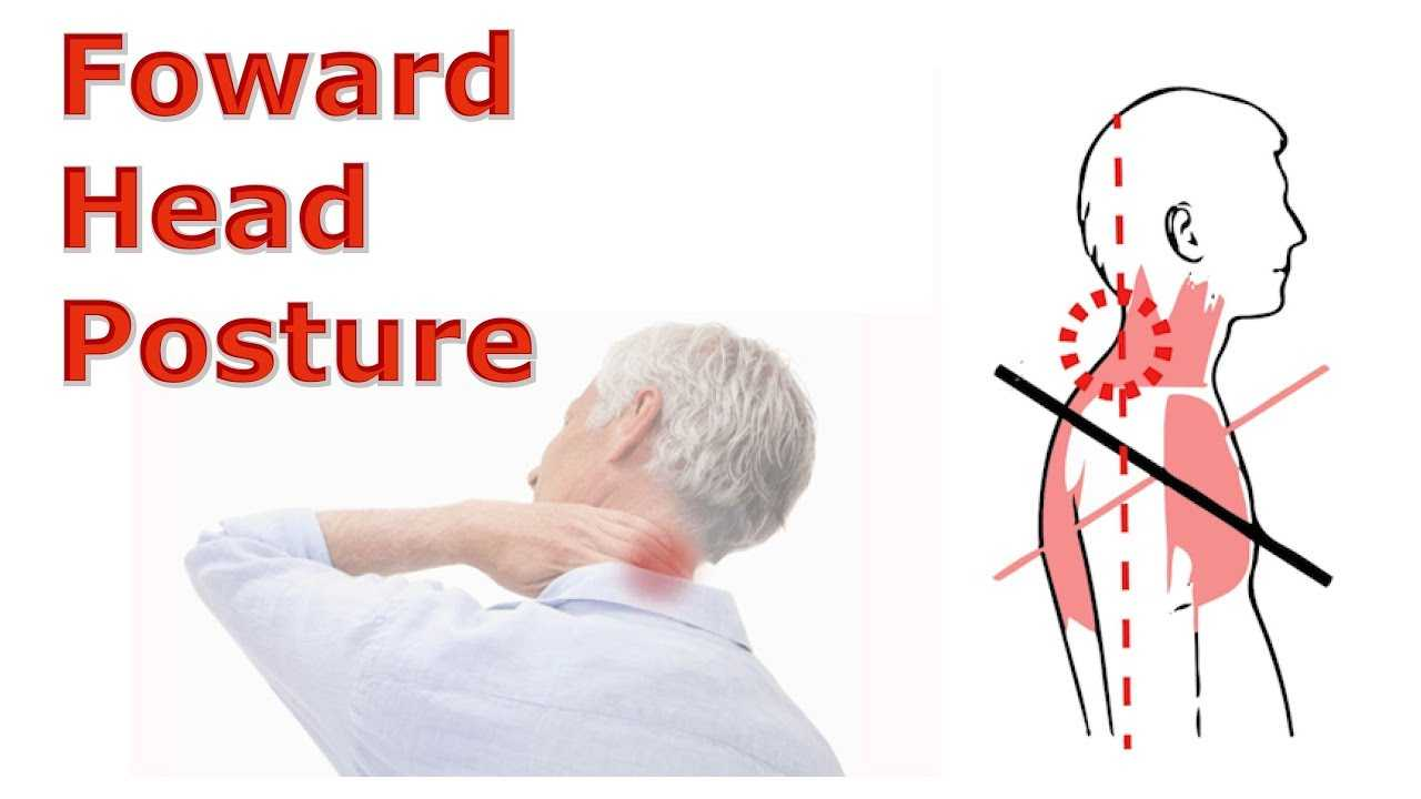 Photo of The Effects of Forward Head Posture