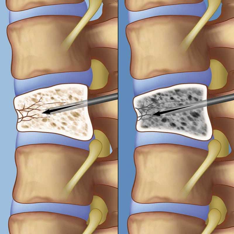 vertebroplasty lg