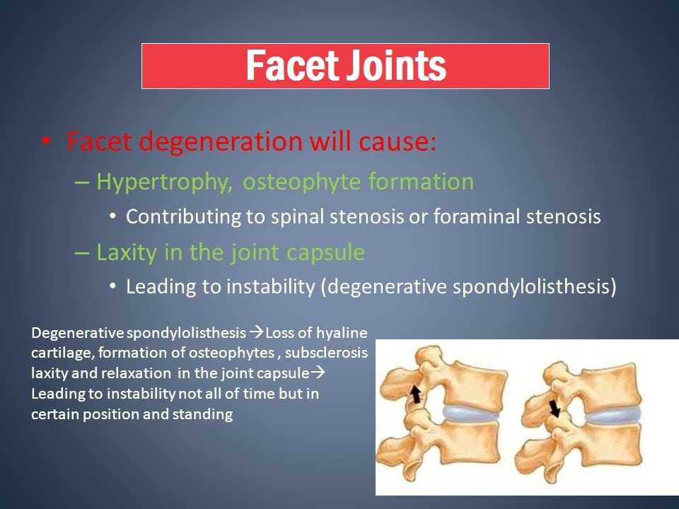 what are facet joints