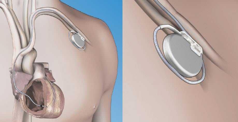 Neurostimulation (Pain Pacemaker)
