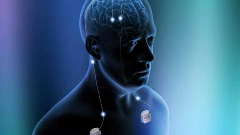Neurostimulation therapies