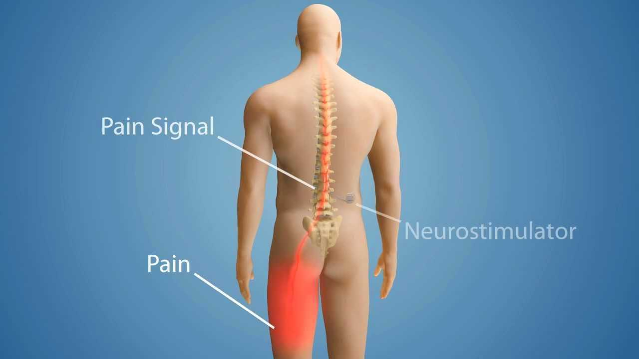 Photo of Basics of Spinal Cord Stimulation