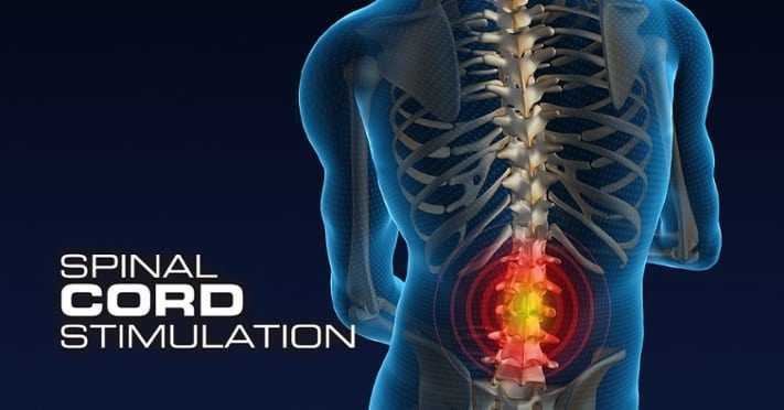 Photo of Frequently asked questions about Spinal Cord Stimulation