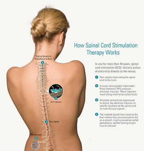 Spinal cord stimulation has three significant advantages.