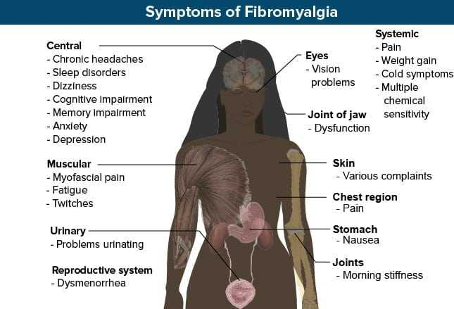 symptoms of fibromyalgia