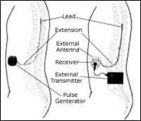 implant illustration