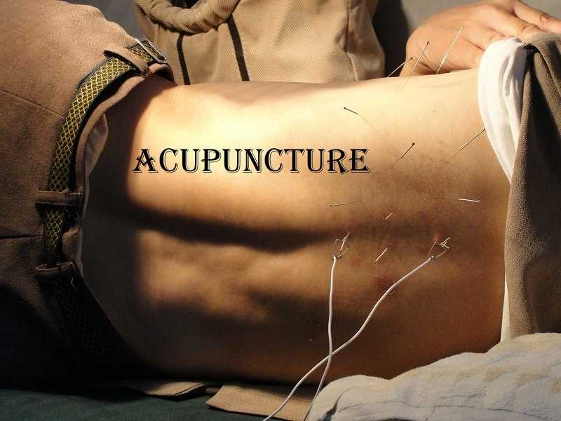 Photo of The Truth About Acupuncture