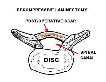 Decompressive Laminectomy