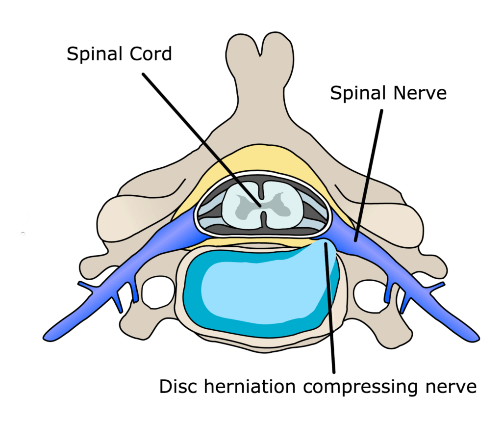 Disc herniation compressing nerve
