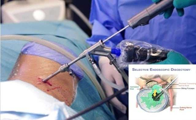 Endoscopic Discectomy Surgery