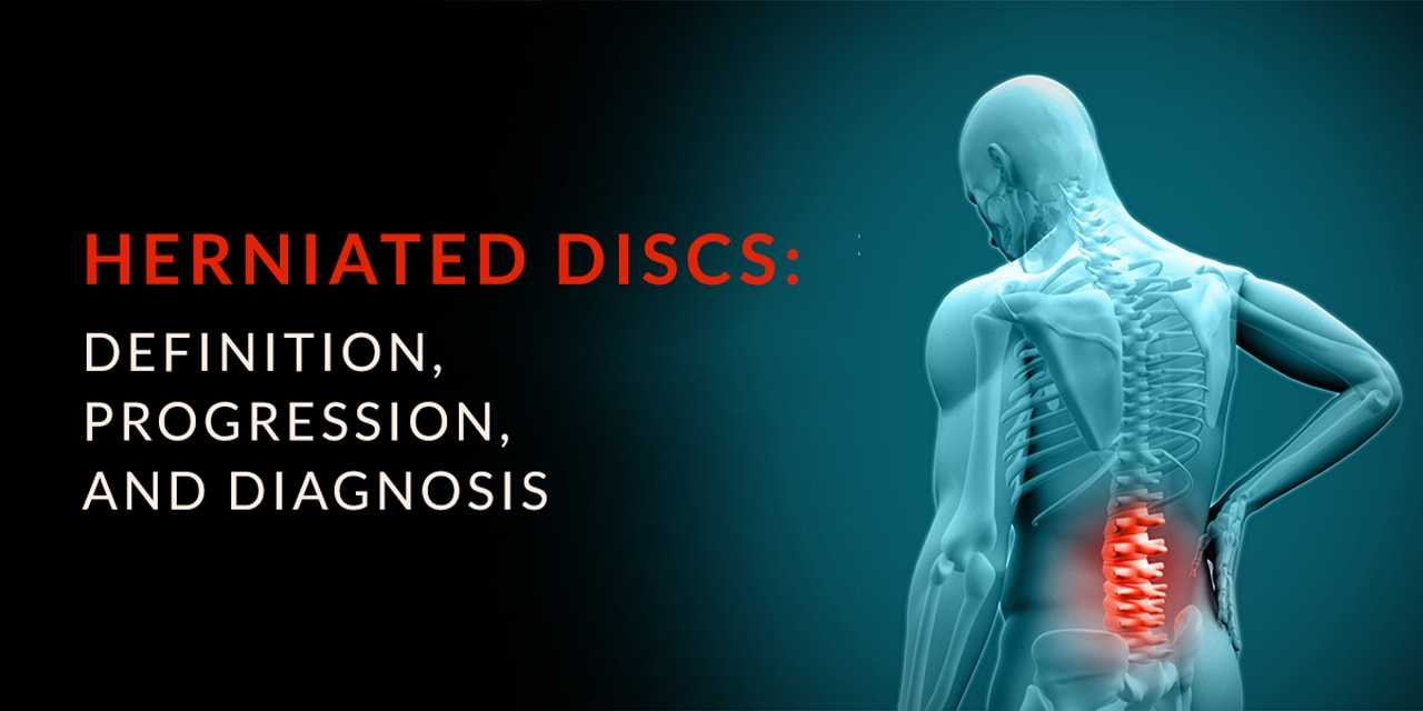 Herniated Disc Definitions Diagnosis