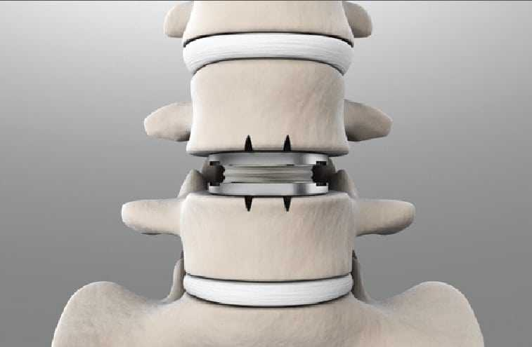 Lumbar spine artificial disc replacement