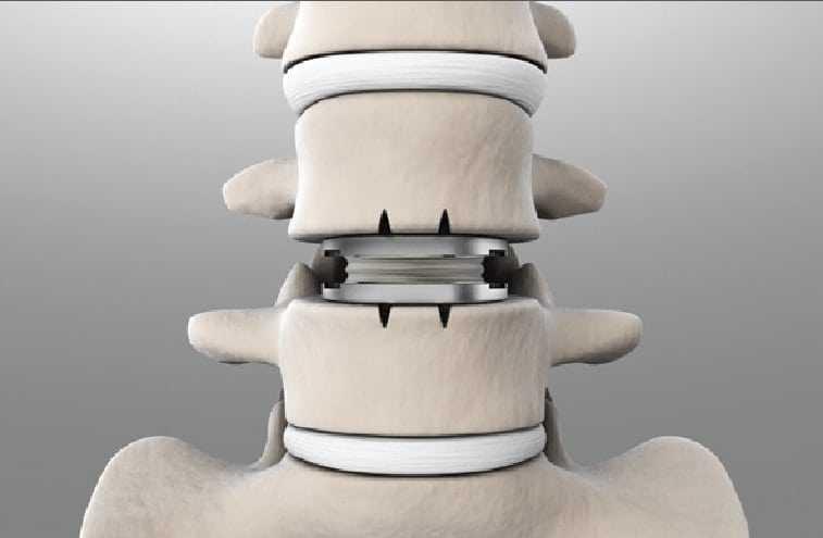 Lumbar spine artificial disc replacement