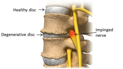 Photo of Degenerative Disc Disease Relief Ideas And Information