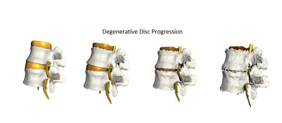 degerenative disc disease progression