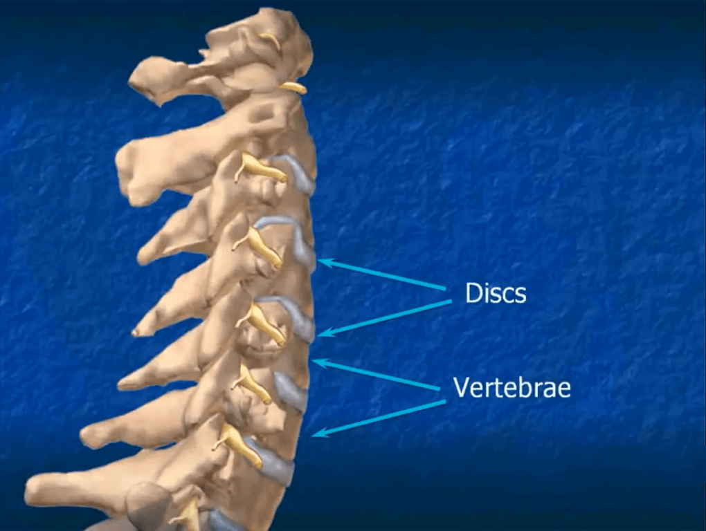 disc vertebrae