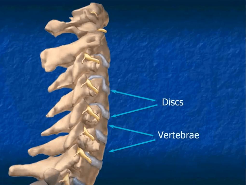 disc vertebrae