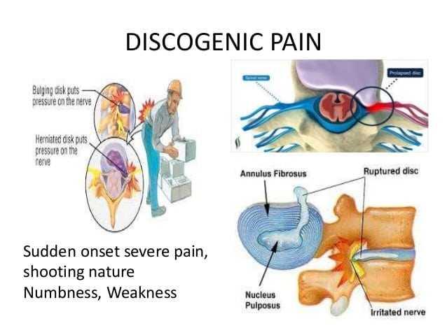 discogenic pain