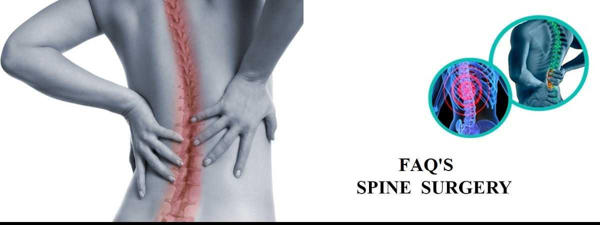 Photo of Frequently Asked Questions about Spine Surgery