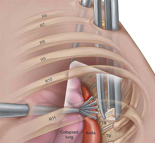 herniated disc discectomy