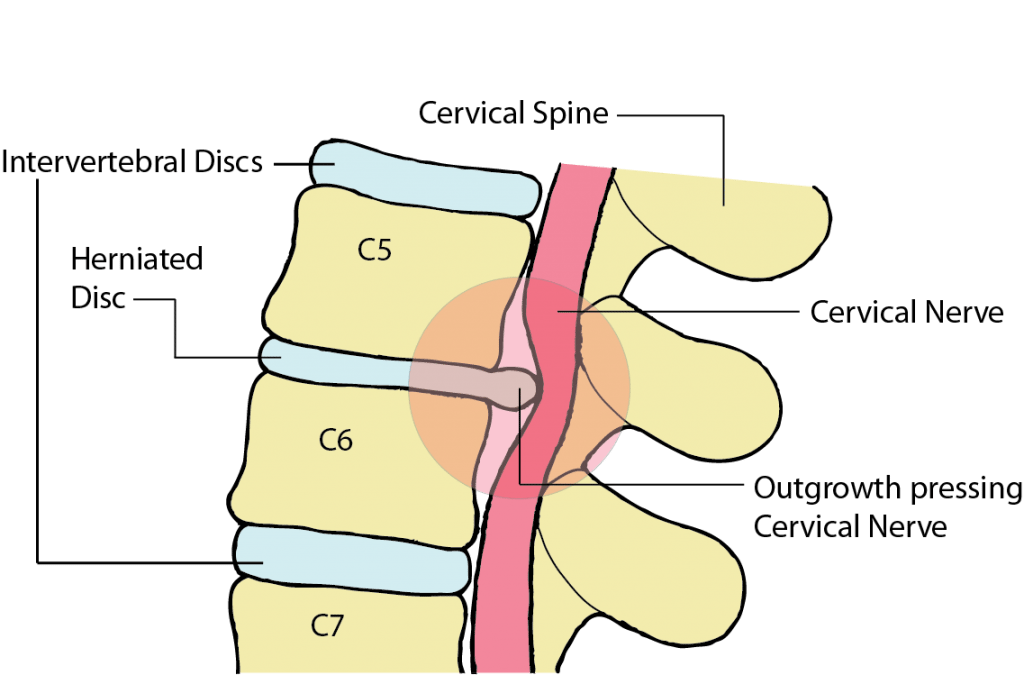 herniated disc touching a spinal nerve