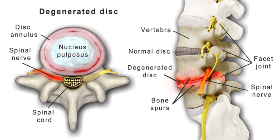 low back pain degenerative disc disease