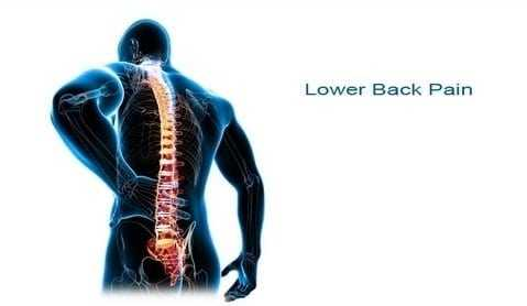 Photo of More Specific Low Back Pain Causes