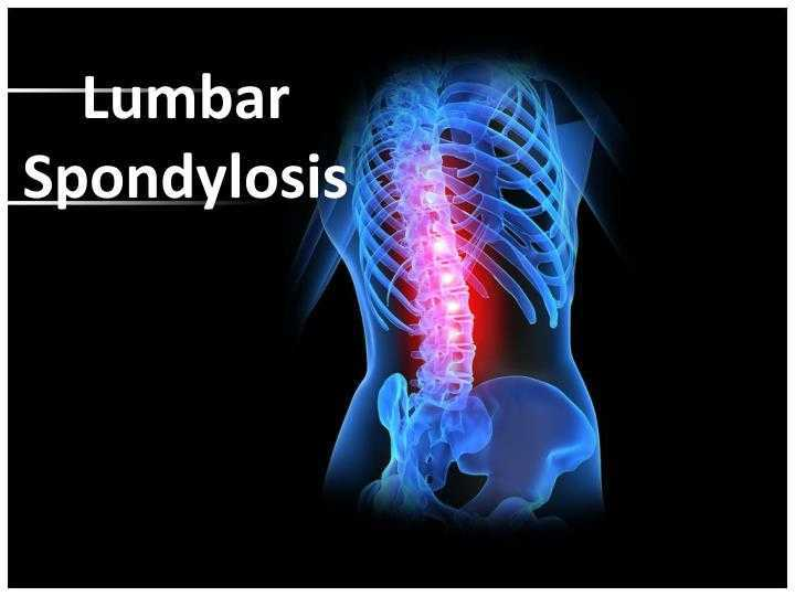 Photo of Lumbar Spondylosis What Is It ?