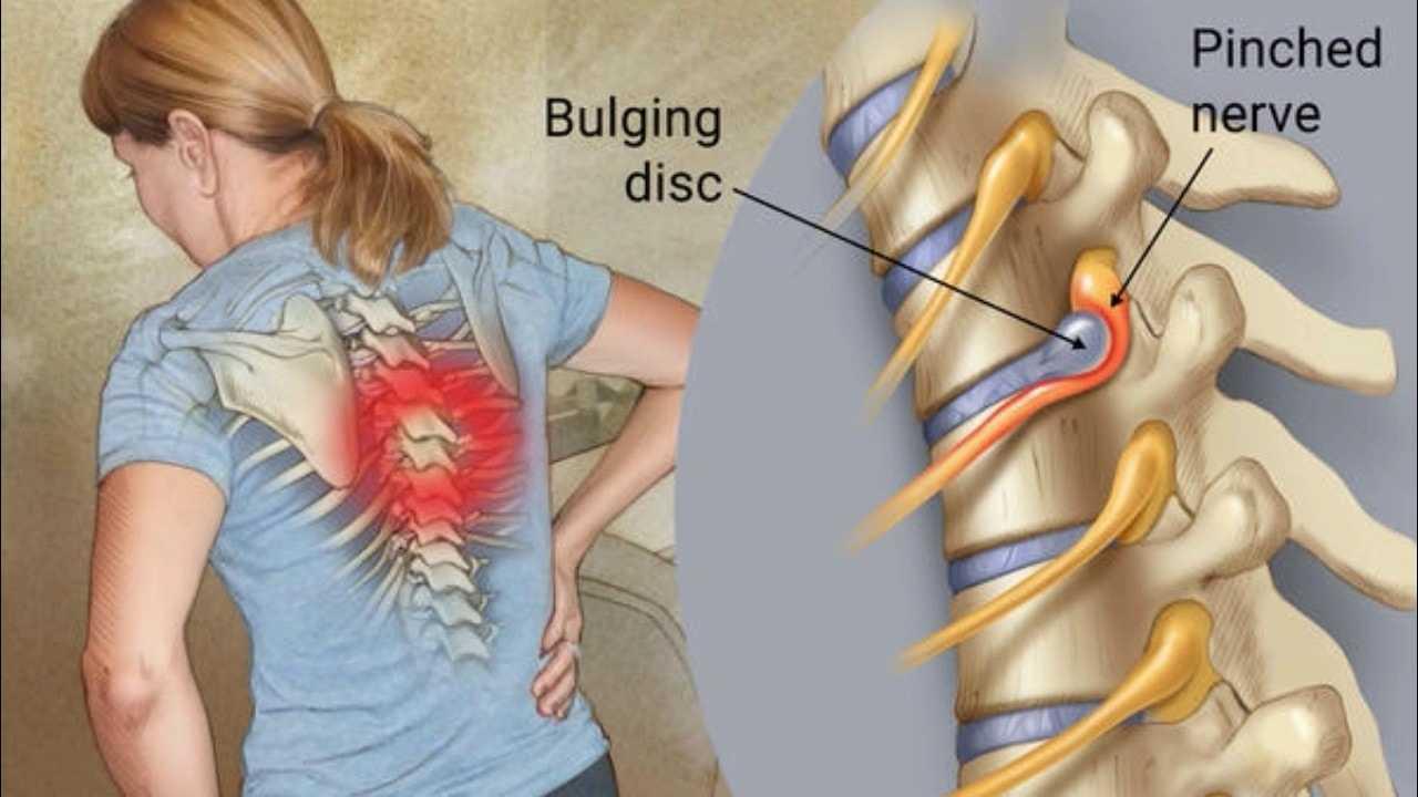 Photo of How Do You Treat A Bulging Disc ?