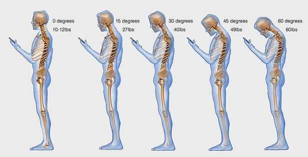 posture for Cervical spondylosis