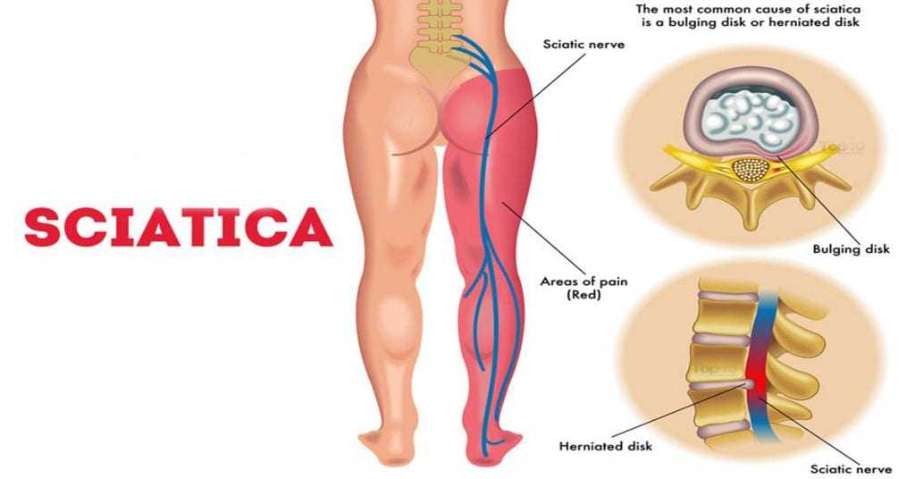 Photo of Sciatica Pain Relief