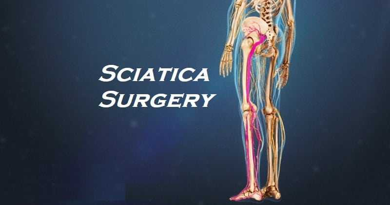 Photo of Sciatica Surgery – Do You Need It?