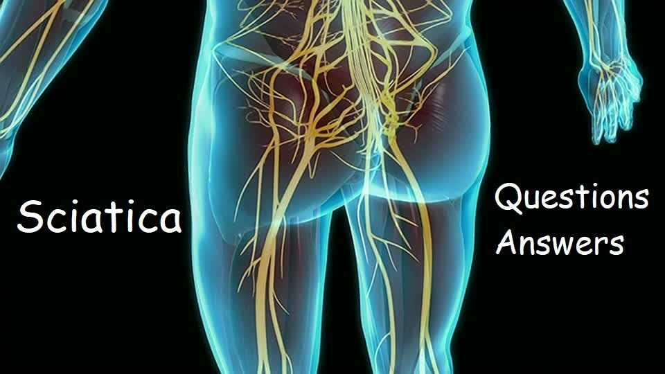 Photo of Sciatica – Questions and Answers