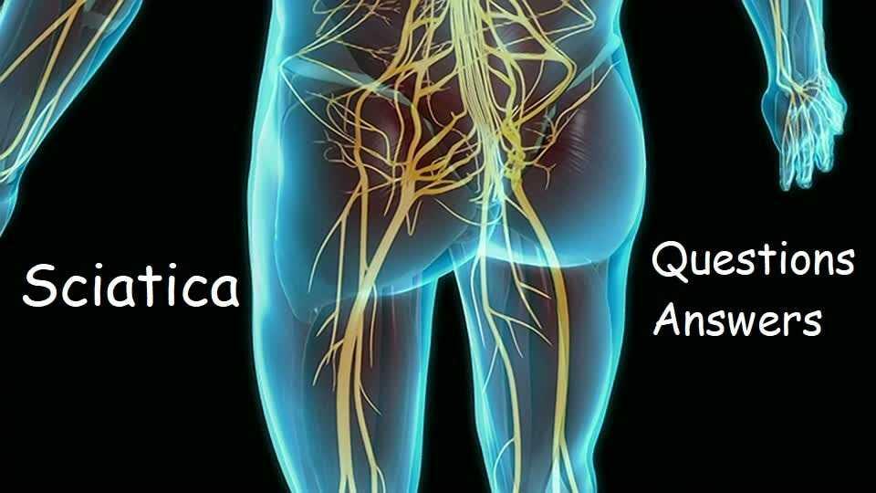 sciatica questions answers