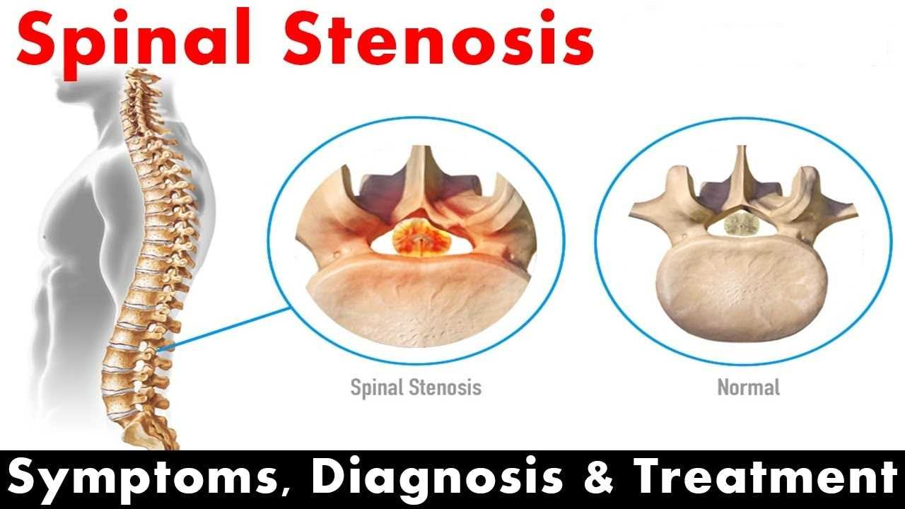 Photo of All About Spinal Stenosis