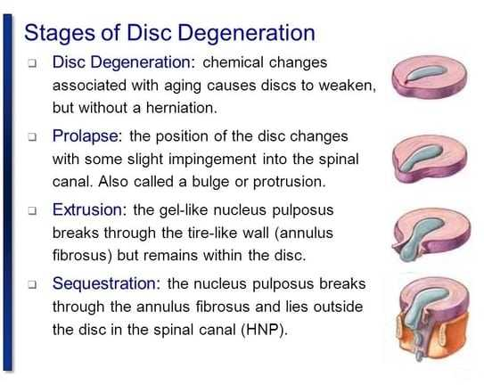 stages of disc degeneration