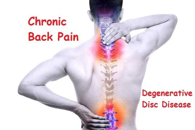 Photo of Chronic Back Pain From Degenerative Disc Disease
