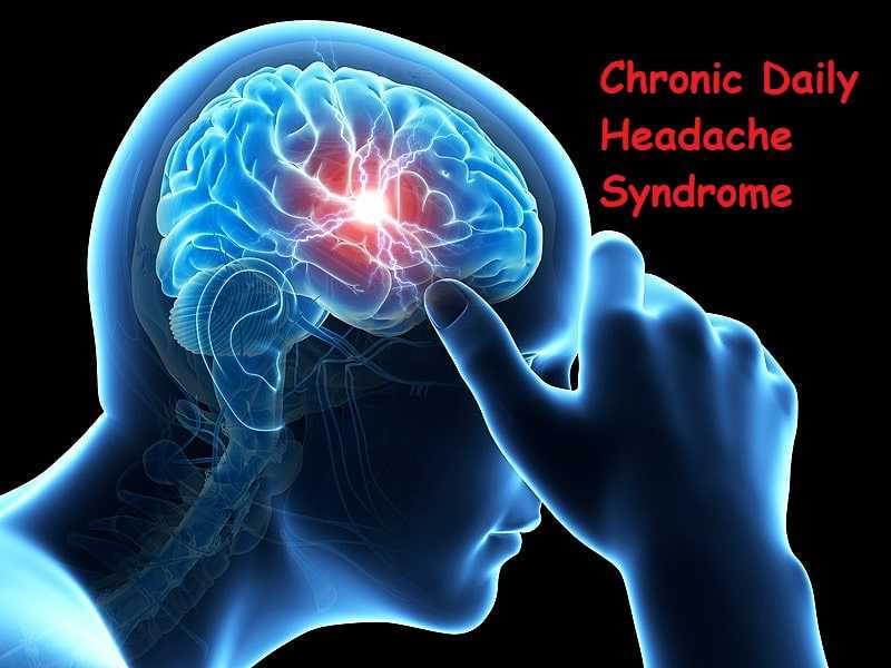 Photo of Chronic Daily Headache Syndrome
