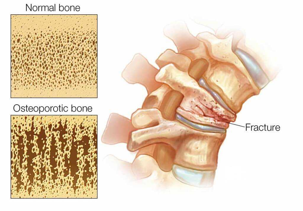 Photo of Osteoporotic Fracture