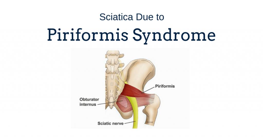 Sciatica Due To Piriformis Syndrome