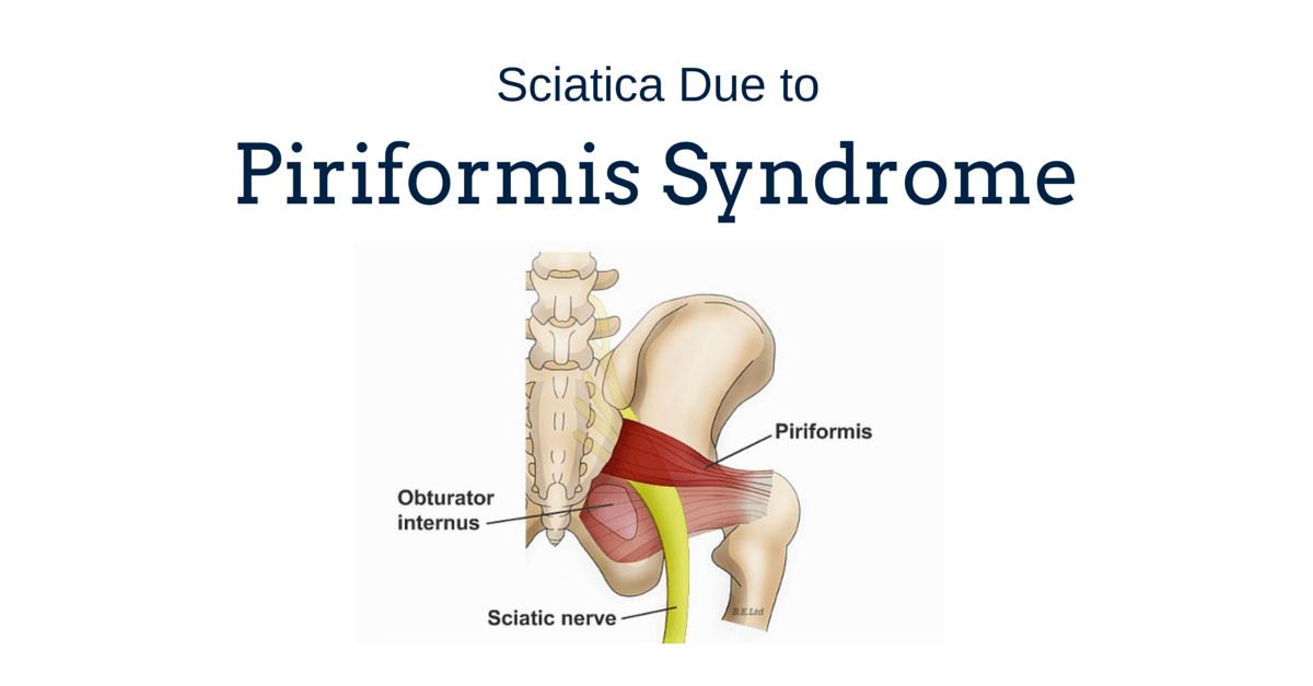 Photo of Sciatica and Piriformis Syndrome