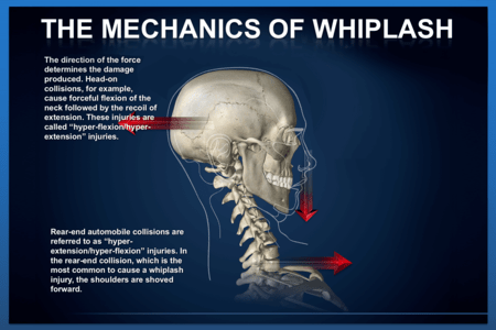 Whiplash Mechanism