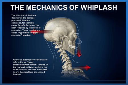 Whiplash Mechanism