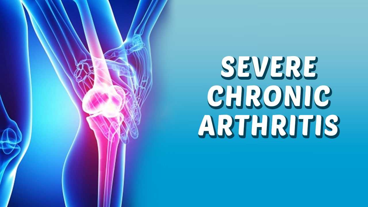 Photo of Severe Chronic Arthritis