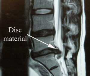 disc material